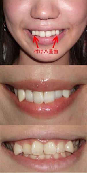 Những thiếu nữ có răng khểnh