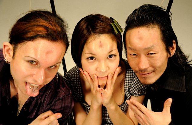 Giới trẻ Nhật rộ mốt làm trán lõm